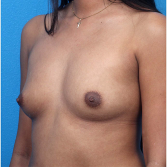 18-24 year old woman treated with Breast Augmentation before 3266377