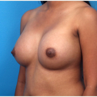 18-24 year old woman treated with Breast Augmentation after 3266377