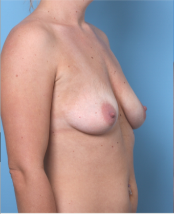 25-34 year old woman treated with Breast Augmentation before 3622438