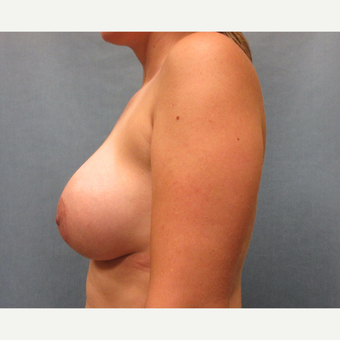 25-34 year old woman treated with Breast Augmentation after 3635431