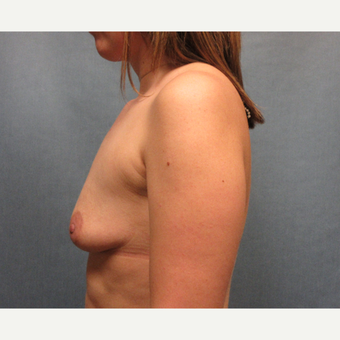 25-34 year old woman treated with Breast Augmentation before 3635431