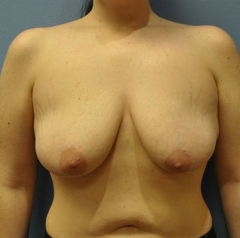 Breast Augmentation, Breast Implants, Mastopexy, Breast Lift before 1206558