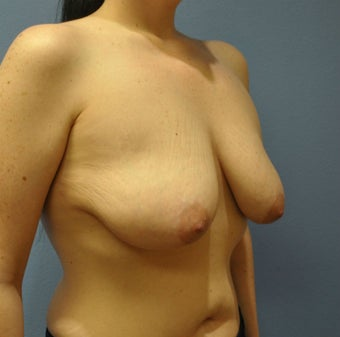 Breast Augmentation, Breast Implants, Mastopexy, Breast Lift 1206558