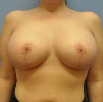 Breast Augmentation, Breast Implants, Mastopexy, Breast Lift after 1206558