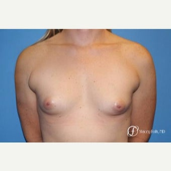 35-44 year old woman treated with MTF Breast Augmentation with Sientra Textured Breast Implants before 2656059