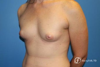 35-44 year old woman treated with MTF Breast Augmentation with Sientra Textured Breast Implants 2656059