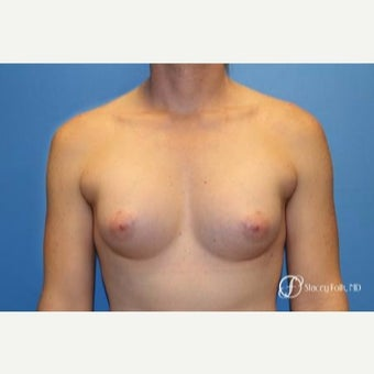 35-44 year old woman treated with MTF Breast Augmentation with Sientra Textured Breast Implants after 2656059