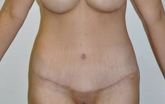 25-34 year old woman treated with Weight Loss after 1807149