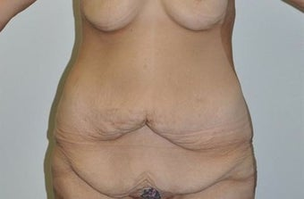 25-34 year old woman treated with Weight Loss before 1807149
