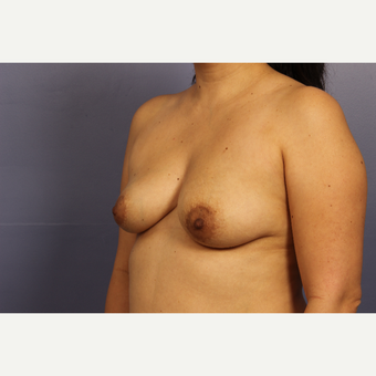 35-44 year old woman treated with Breast Lift with Implants before 3110593
