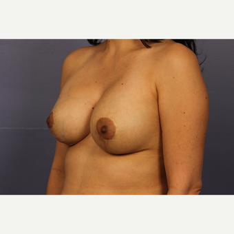 35-44 year old woman treated with Breast Lift with Implants after 3110593