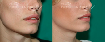 25-34 year old woman treated with Lip Reduction