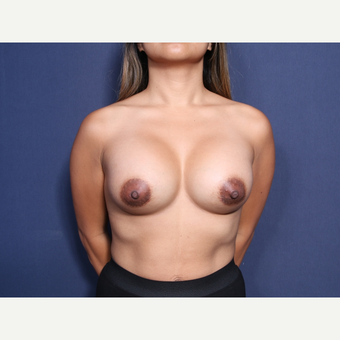 35-44 year old woman treated with Breast Augmentation (view 1 of 2) after 3737378