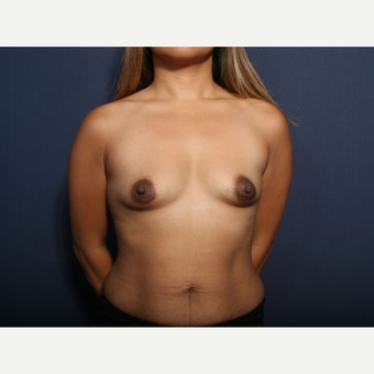 35-44 year old woman treated with Breast Augmentation (view 1 of 2) before 3737378