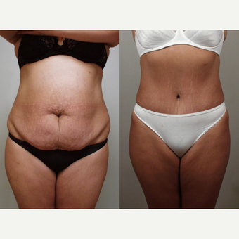 32 year old woman treated with Tummy Tuck and Liposuction to Flanks before 3482699