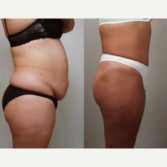 32 year old woman treated with Tummy Tuck and Liposuction to Flanks after 3482699