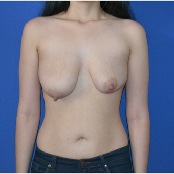 25-34 year old woman treated with Breast Lift before 3466559