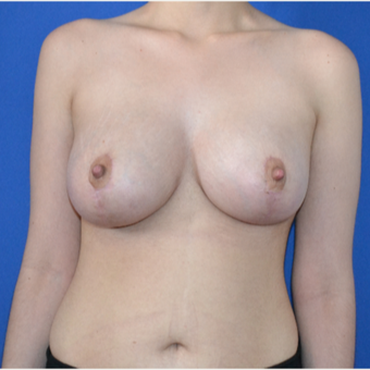 25-34 year old woman treated with Breast Lift after 3466559
