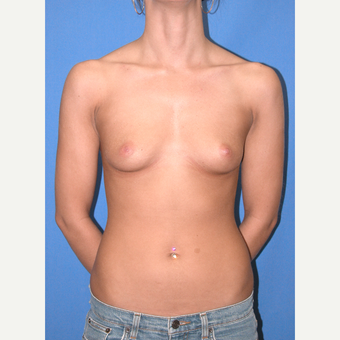 25-34 year old woman treated with Breast Implants before 3065897