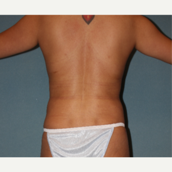 35-44 year old woman treated with Liposuction after 3253555