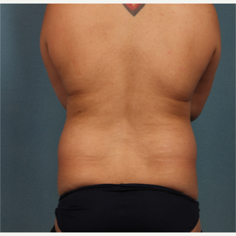 35-44 year old woman treated with Liposuction before 3253555