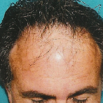 45-54 year old man treated with Hair Transplant before 3495102