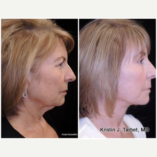 55-64 year old woman treated with Brow Lift, Facelift, & Quad Bleph after 3524545