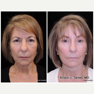 55-64 year old woman treated with Brow Lift, Facelift, & Quad Bleph before 3524545