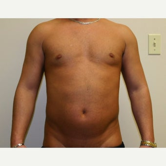 35-44 year old man treated with Vaser Liposuction before 2083534