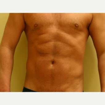 35-44 year old man treated with Vaser Liposuction after 2083534