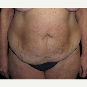 57 year old woman treated with Tummy Tuck before 3092858