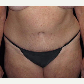 57 year old woman treated with Tummy Tuck after 3092858