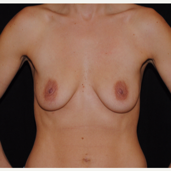 25-34 year old woman treated with Breast Lift with Implants before 3300346