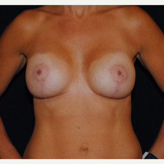 25-34 year old woman treated with Breast Lift with Implants after 3300346