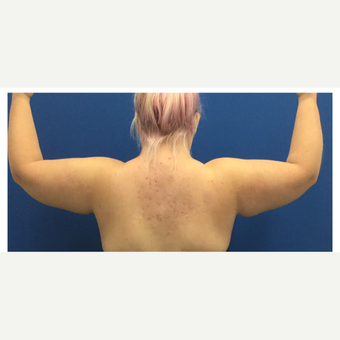 18-24 year old woman treated with Smart Lipo before 3495455