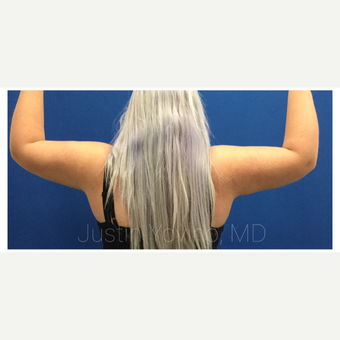 18-24 year old woman treated with Smart Lipo after 3495455