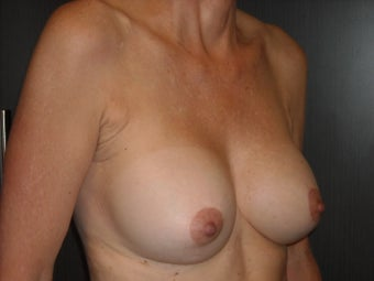 60 year old lady treated for saggy breasts.   1519424