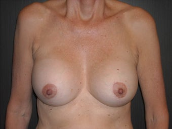 60 year old lady treated for saggy breasts.   after 1519424