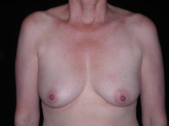 60 year old lady treated for saggy breasts.   before 1519424