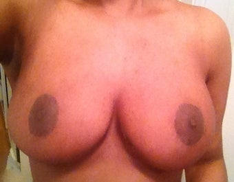 28 year old woman who underwent Ultimate Breast Reduction  after 1274898