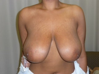 28 year old woman who underwent Ultimate Breast Reduction  before 1274898