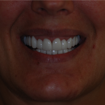 45-54 year old woman treated with Smile Makeover after 3506857