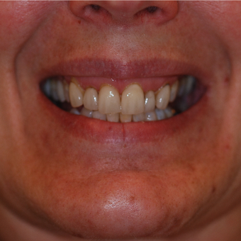 45-54 year old woman treated with Smile Makeover before 3506857