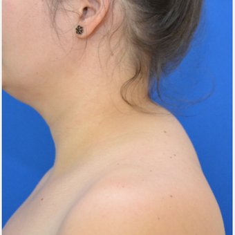 Buffalo Hump Reduction with Liposuction before 3804238