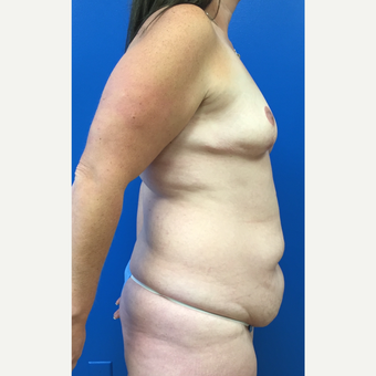 35-44 year old woman treated with Mommy Makeover before 3322454