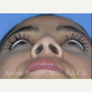 29 year old woman treated with Revision Rhinoplasty after 3460657
