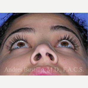 29 year old woman treated with Revision Rhinoplasty before 3460657