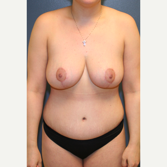 25-34 year old woman treated with Mommy Makeover after 3475477