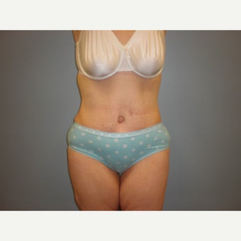 35-44 year old woman treated with Tummy Tuck after 1649538