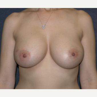 35-44 year old woman treated with Breast Augmentation after 3455597
